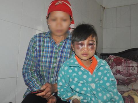Vụ cô giáo đánh thương tích học sinh ở Phìn Ngan: Công an vào cuộc