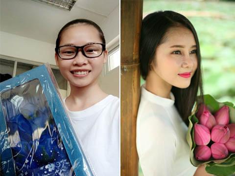 Nguyễn Hà My: Thay đổi diện mạo vì một vết chàm