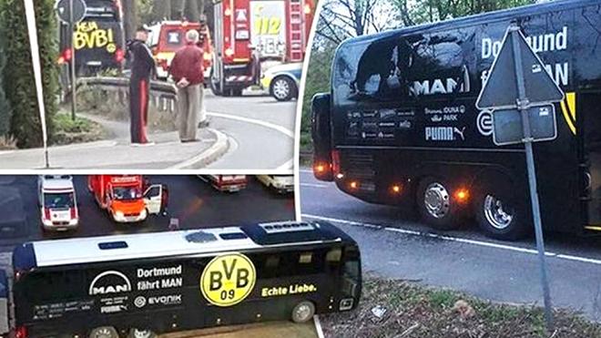 Dortmund phải đá với Monaco chỉ 1 ngày sau vụ bị đánh bom: UEFA quá thiếu tình người?