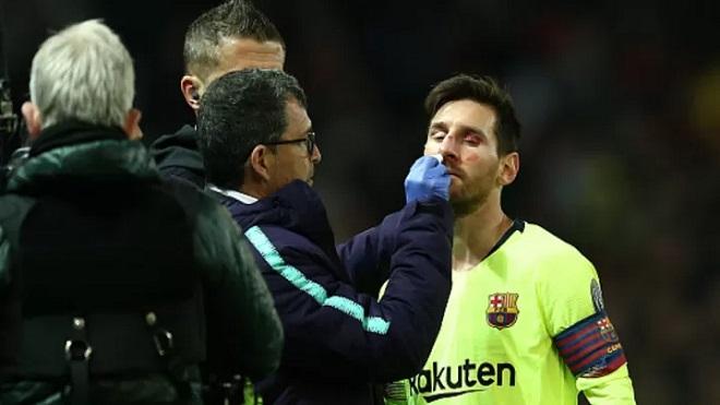 Smalling tuyên bố 'mang Messi đến đây!'. Kết quả: Messi đổ máu, tịt ngòi!