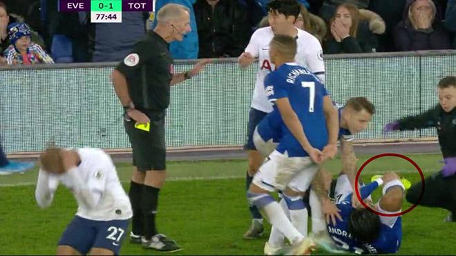 Bong da, bóng đá, Everton 1-1 Tottenham, kết quả bóng đá Anh, Andre Gomes gãy chân, Son Heung Min thẻ đỏ, Aurier kết quả bóng đá hôm nay, BXH bóng đá Anh, Carragher, kqbd