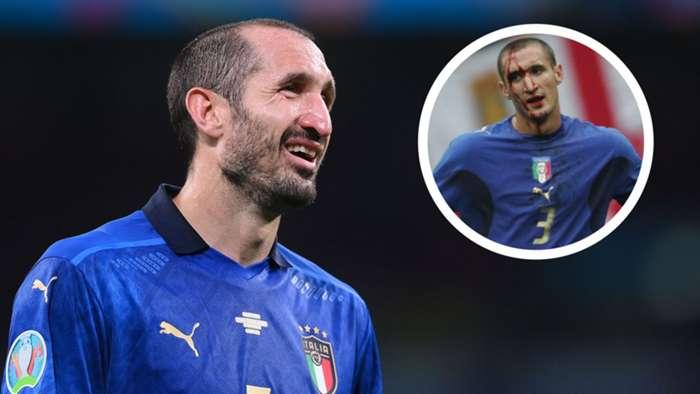 Nhận định Anh vs Ý (VTV3 trực tiếp): Chiellini đã sẵn sàng cho trận chiến cuối