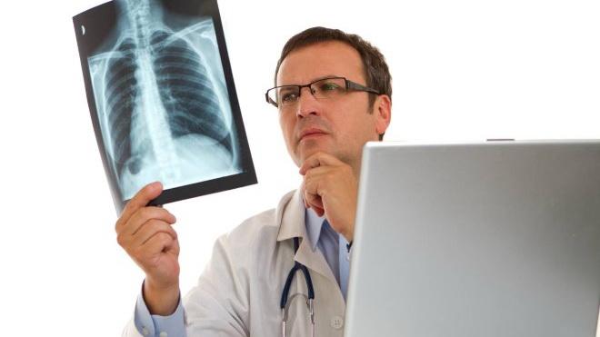 Phát hiện hoạt chất mới giúp điều trị ung thư phổi