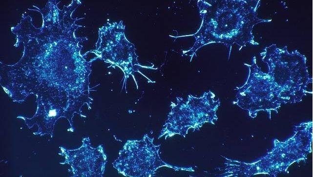 Phát hiện loại protein kích thích sự phát triển của khối u ung thư