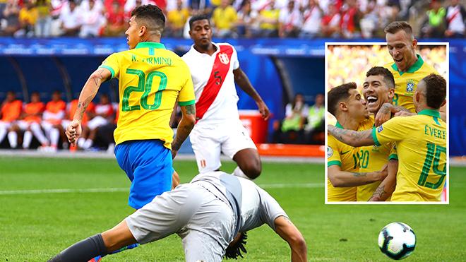 Brazil vs Peru: Người chờ phục sinh, kẻ mong lịch sử