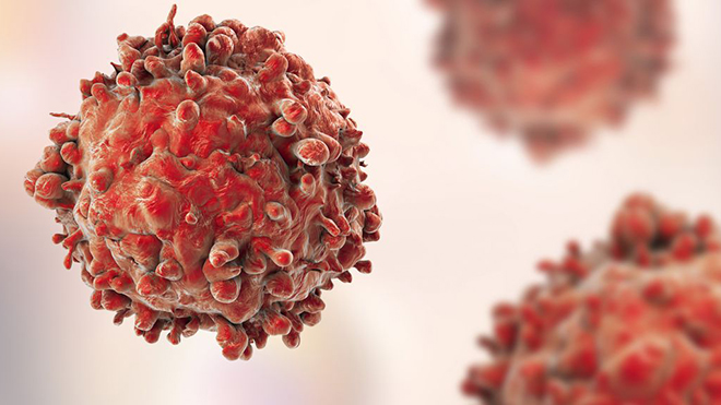 Nga tìm ra cách tiêu diệt tế bào ung thư