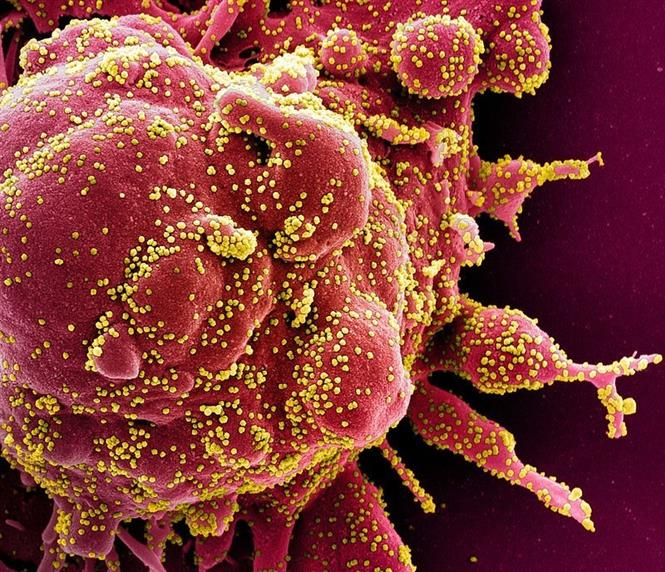 Hình ảnh quét qua kính hiển vi điện tử cho thấy một tế bào (màu đỏ) bị virus SARS-COV-2 (màu vàng) xâm nhập, lấy từ mẫu bệnh phẩm của bệnh nhân COVID-19. Ảnh: AFP/ TTXVN