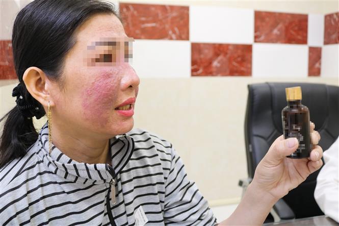 Trong ảnh: Bệnh nhân bị tai biến da và lọ mỹ phẩm làm trắng da cấp tốc bán trên mạng xã hội. Ảnh: TTXVN phát