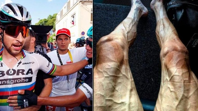 Cua rơ Tour de France khoe bắp chân CHẰNG CHỊT mạch máu