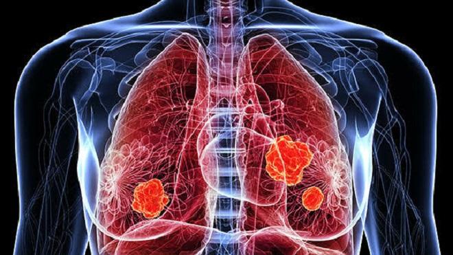 Ung thư phổi, phụ nữ, châu Á, tăng, ung thư
