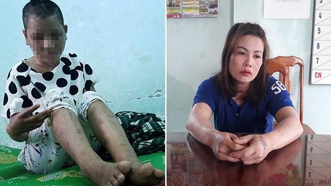 Gia Lai: Khởi tố đối tượng hành hung người làm công