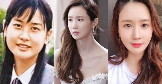 Sao Hàn phẫu thuật thẩm mỹ, diễn viên Hàn, Park Min Young, Lee Da Hae, Min Hyo Ri, kim nam joo, kim hyun joong, uee, thư ký Kim sao thế