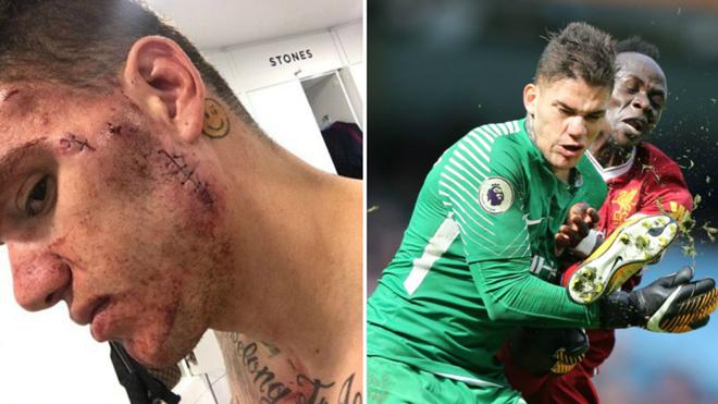 Fan Liverpool câm nín trước khuôn mặt biến dạng vì các mũi khâu của Ederson