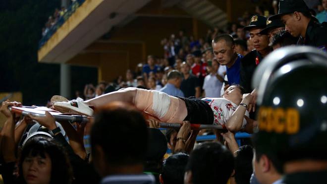 Tin tức, CĐV Nam Định đốt pháo sáng, Hà Nội vs Nam Định, bóng đá việt nam, Vleage 2019, V-league 2019, CĐV Nam Định, bong da, án phạt cho CĐV Nam Định, CĐV nhập viện