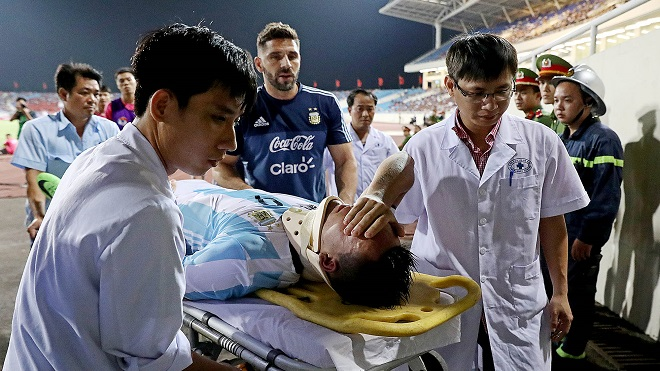'Sao' triệu đô U20 Argentina gãy mũi, chia tay World Cup sau va chạm với trung vệ U22 Việt Nam