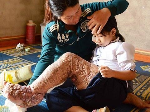Viện nghiên cứu RTI của Mỹ khen ngợi Việt Nam thanh toán được bệnh chân voi
