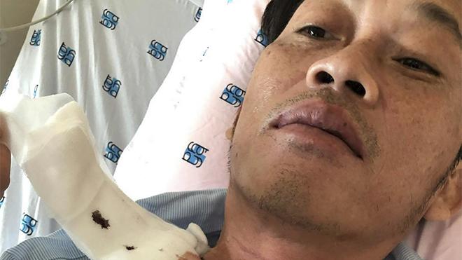 Hoài Linh bị ung thư tuyến giáp, phải xạ trị 2 lần