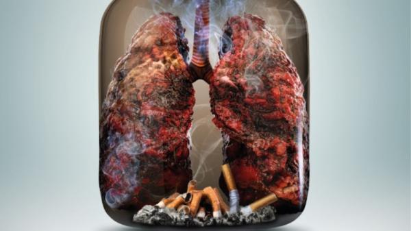 Ngày Thế giới không thuốc lá 31/5: Thuốc lá và các bệnh về phổi